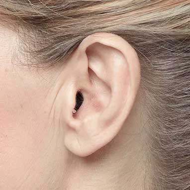 apparecchi-acustici-intrauricolari-ite