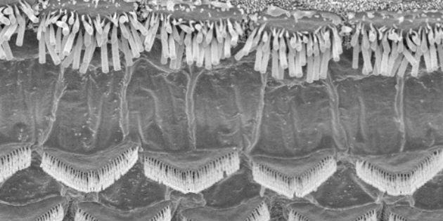 haircells inner ear