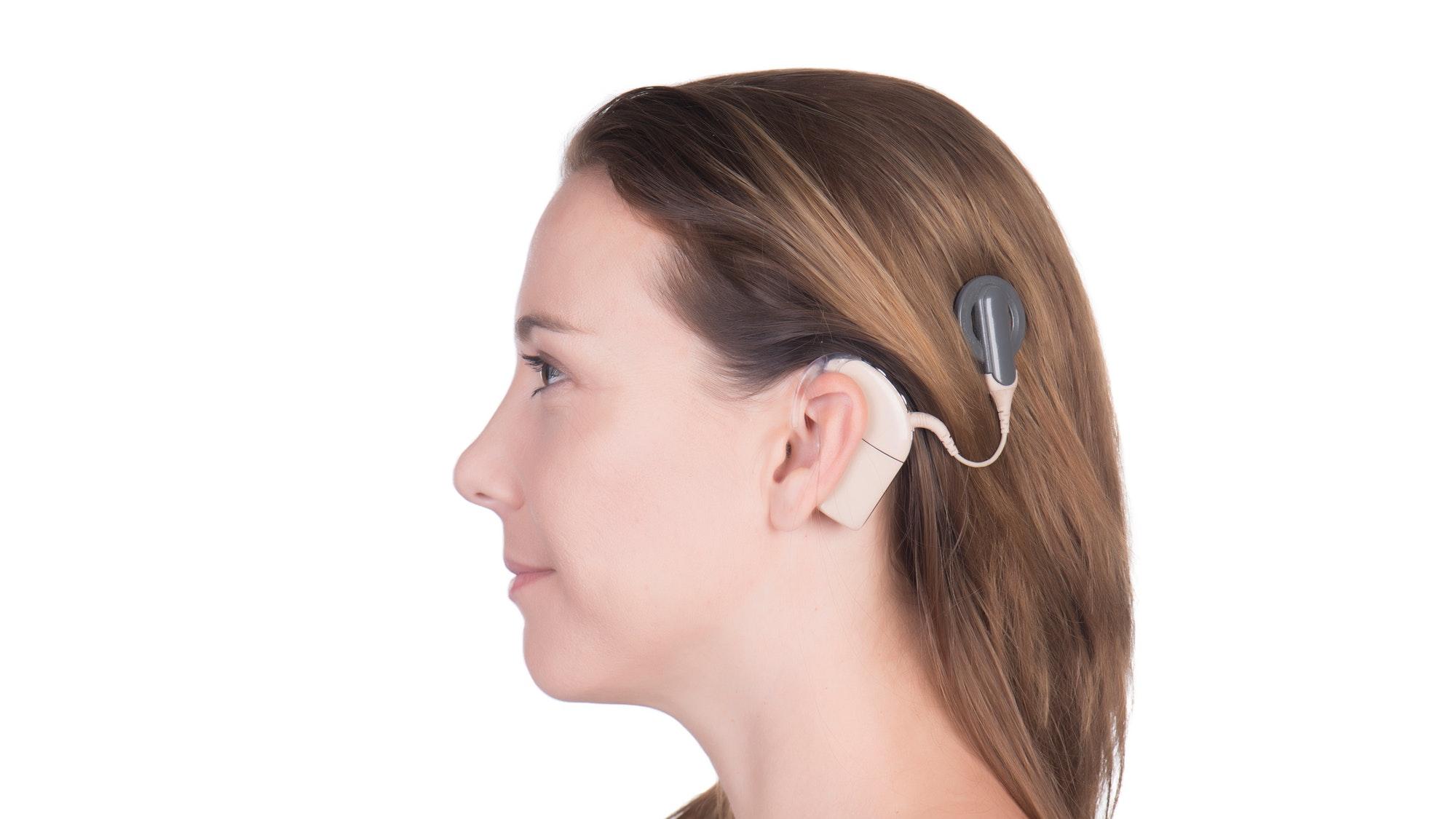 impianto-cocleare-vs-apparecchio-acustico